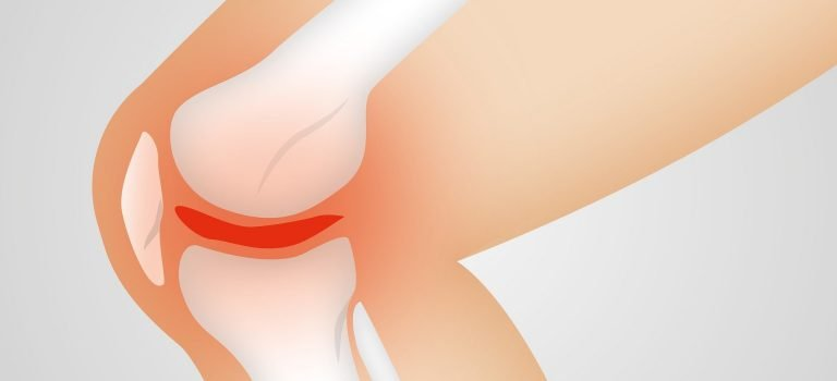 Genetic study reveals possible new routes to treating osteoarthritis